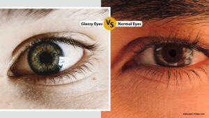 glassy eyes vs normal eyes