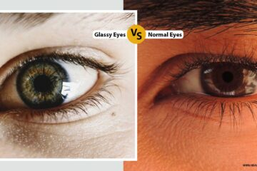 glassy eyes vs normal eyes